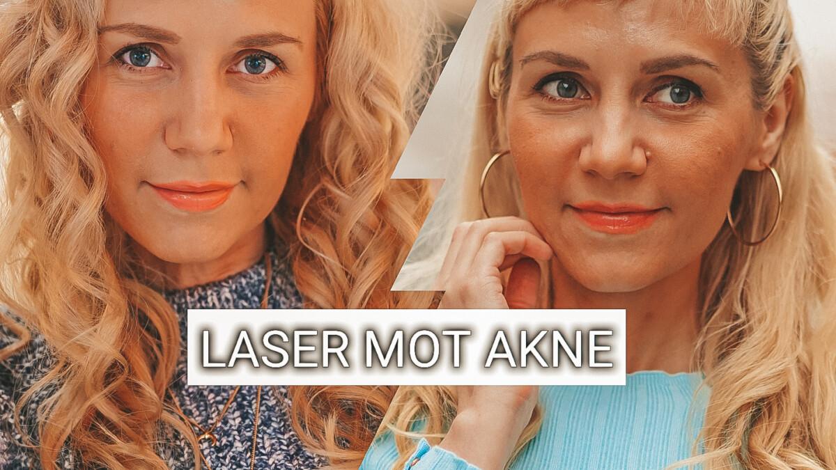 laser mot akne