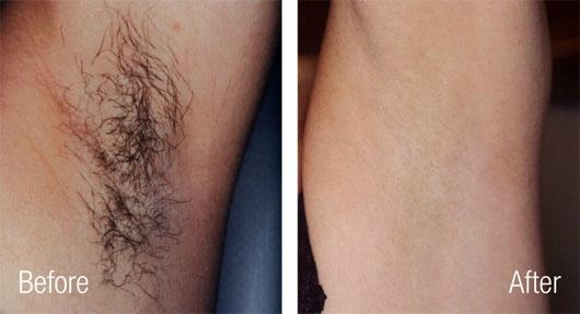 laserbehandling hårfjerning
