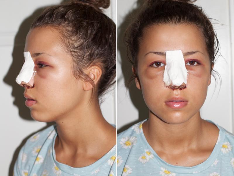 neseoperasjon før og etter