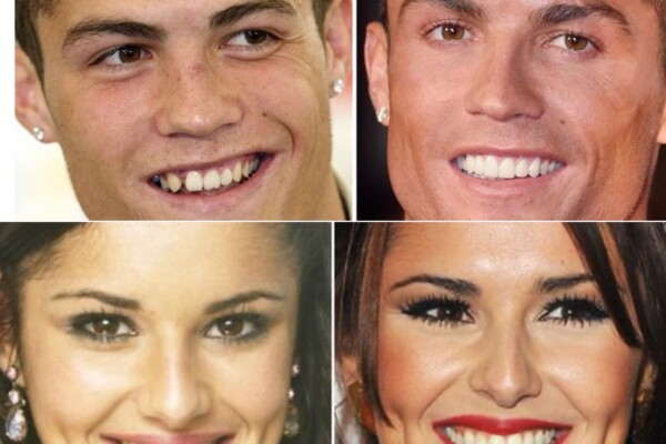 Winning smile med Invisalign fra Oris Dental Lysaker