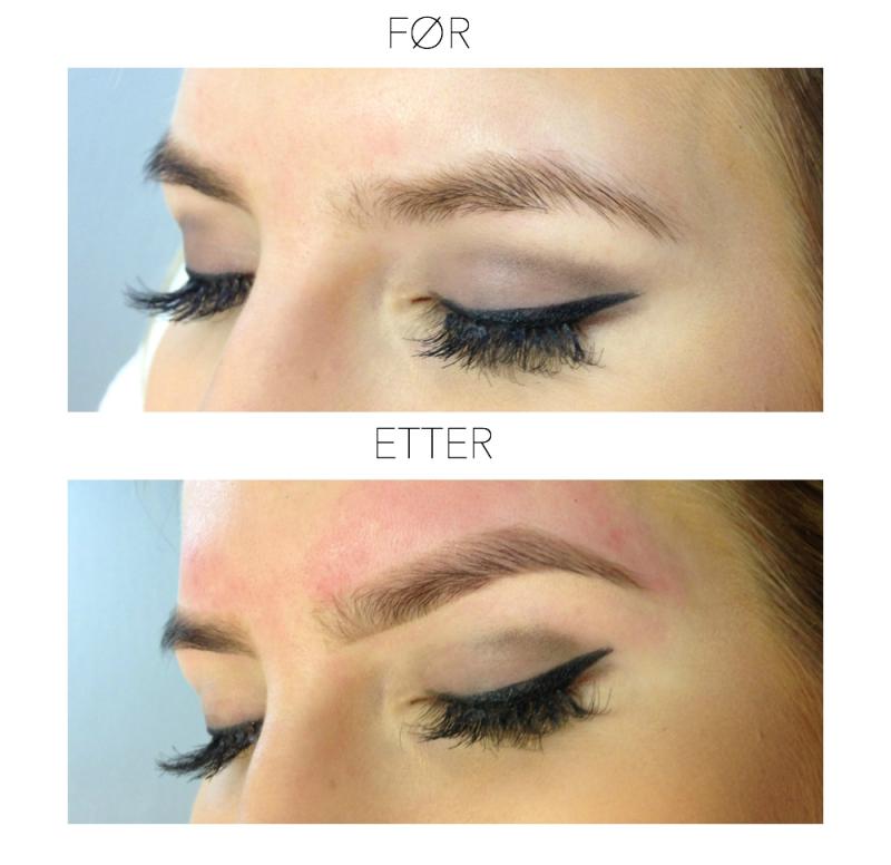 castor oil øjenbryn