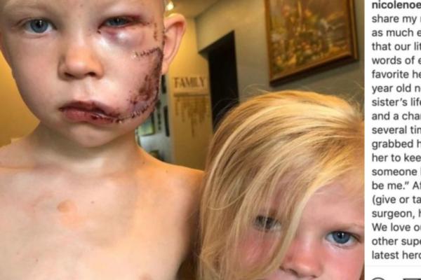En seks år gammel gutt hylles som en helt etter at han beskyttet søsteren sin fra et hundeangrep