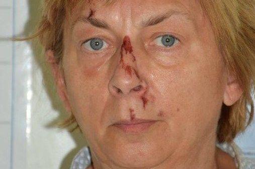Fisker fant gråtende kvinne med kuttskader – men hvem er kvinnen?