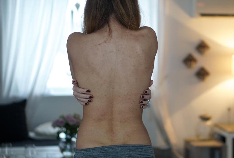 arr etter kviser på ryggen