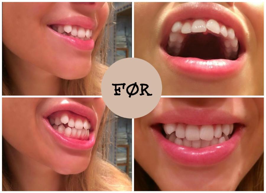 regulering bak tennene