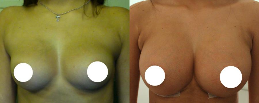 tcmn silikon før og etter naken damer